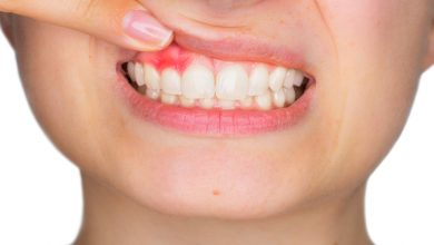 Photo of 6 BEST WAYS TO RESISTANCE MOUTH SORES