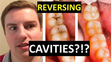 Photo of 5 EASY WAYS TO RESCUE TEETH CAVITIES
